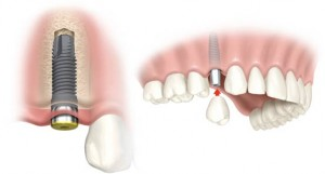 Dental Implant 12
