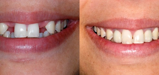 Dental Implant result 2