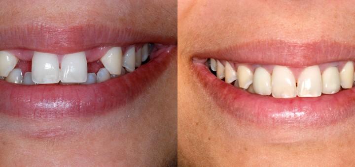 Dental Implant result 2