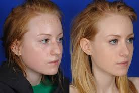 rhinoplasty on woman