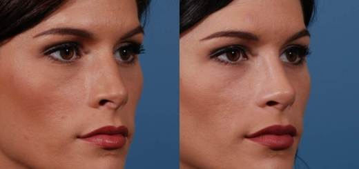 rhinoplasty result
